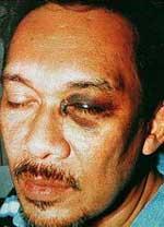 anwar ibrahim black eye small 080206