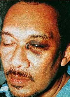 anwar ibrahim black eye 080206