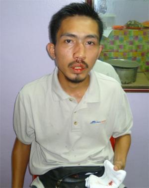 Guy injured during Mohd Sabu ceramah at Seremban